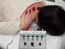 Electrical Acupuncture